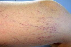 Le traitement de la varicosité à khevize