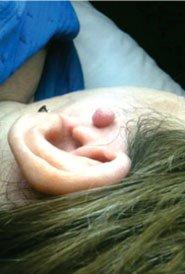 Esthétique Obella - Thermocoagulation