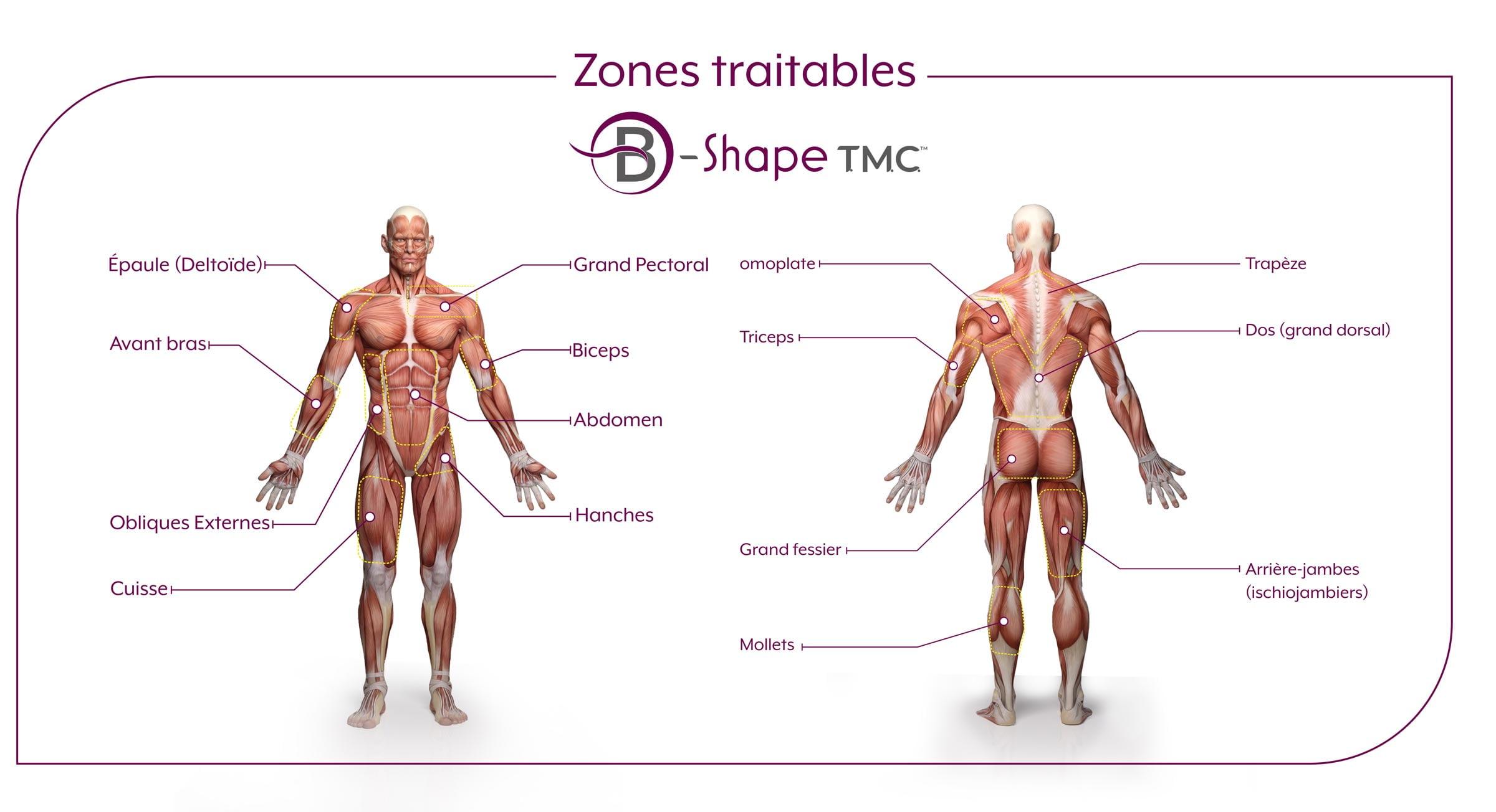 Zones traitables par B-Shape TMC